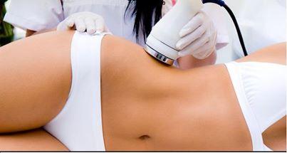 Aplicando la liposuccion laser
