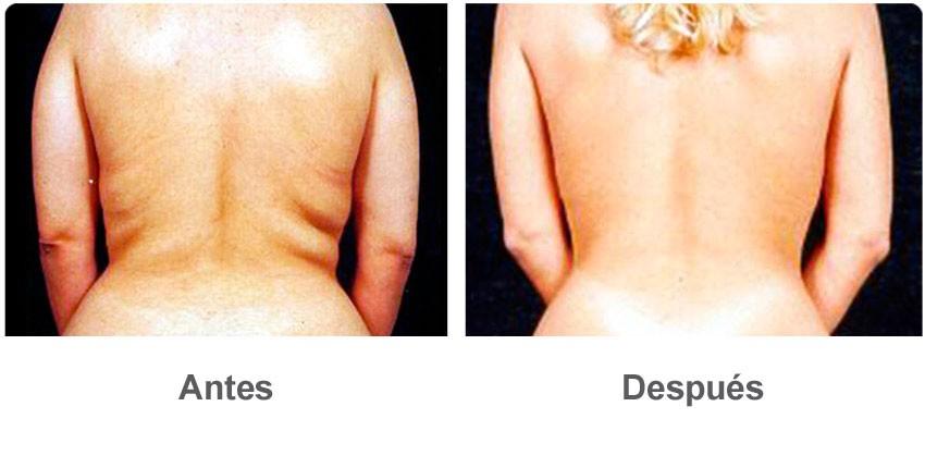 recuperacion liposuccion